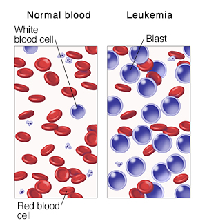 Two panels comparing normal peripheral blood vs. leukemia. Used in 40351, 85205.  SOURCE: Lange Basic Histology 7th ed., www. manros_therapeutics.com/en/pipeline